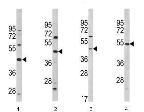 Western blot - Anti-PTAR1 antibody (ab93212)