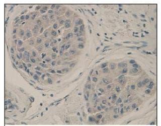 Immunohistochemistry (Formalin/PFA-fixed paraffin-embedded sections) - Anti-ACVRL1 antibody (ab93595)