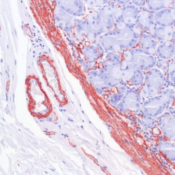 Immunohistochemistry using ab93686