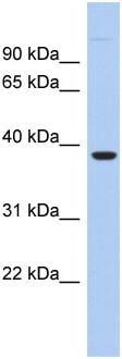 Western blot - Anti-FITM1 antibody (ab94487)