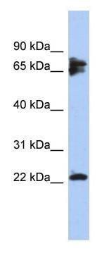 Western blot - Anti-Calcineurin B antibody (ab94535)