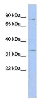 Western blot - Anti-STX19 antibody (ab94538)