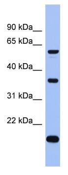 Western blot - Anti-LARP6 antibody (ab94640)
