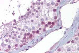 Immunohistochemistry (Formalin/PFA-fixed paraffin-embedded sections) - Anti-Securin antibody (ab94689)