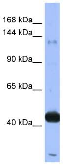 Western blot - Anti-RASGRF1 antibody (ab94722)