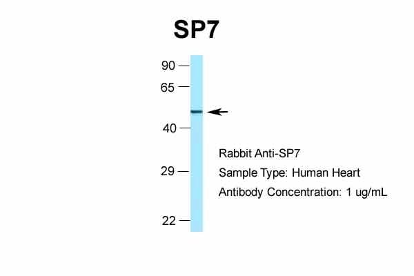 Western blot - Anti-Sp7 / Osterix antibody (ab94744)