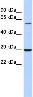 Western blot - Anti-LPCAT1 antibody (ab94903)