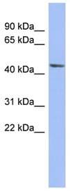 Western blot - Anti-Bestrophin 3 antibody (ab94904)