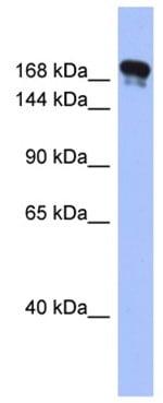 Western blot - Anti-Synaptojanin antibody (ab94912)