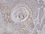 Immunohistochemistry (Formalin/PFA-fixed paraffin-embedded sections) - Anti-MAN1B1 antibody (ab95975)