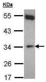 Western blot - Anti-CYB5R1 antibody (ab96103)