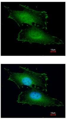 Immunocytochemistry/ Immunofluorescence - Anti-PEF1 antibody (ab96132)