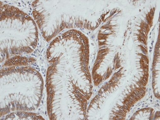 Immunohistochemistry (Formalin/PFA-fixed paraffin-embedded sections) - Anti-HSD3a antibody (ab96135)