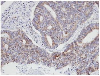 Immunohistochemistry (Formalin/PFA-fixed paraffin-embedded sections) - Anti-p21-ARC antibody (ab96137)