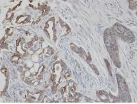 Immunohistochemistry (Formalin/PFA-fixed paraffin-embedded sections) - Anti-Cytokeratin 2e antibody (ab96145)