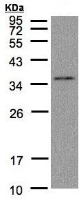 Western blot - Anti-GLOD4 antibody (ab96194)