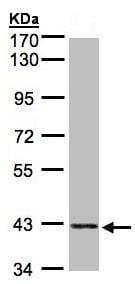 Western blot - Anti-PRPSAP2 antibody (ab96278)