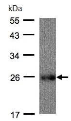 Western blot - Anti-UQCRFS1 antibody (ab96331)