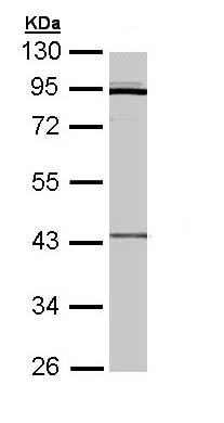 Western blot - Anti-CRLF1 antibody (ab96366)