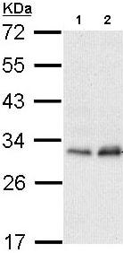 Western blot - Anti-PMM2 antibody (ab96399)