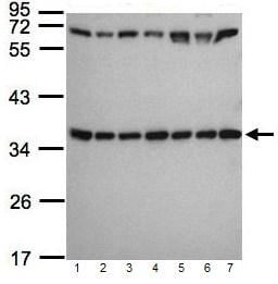 Western blot - Anti-RPS3A antibody (ab96534)