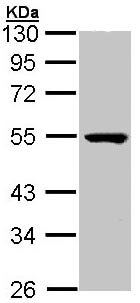 Western blot - Anti-PSKH1 antibody (ab96602)