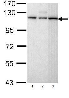 Western blot - Anti-SART1 antibody (ab96654)