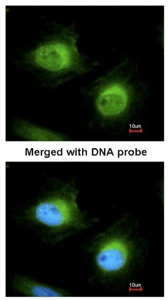 Immunocytochemistry/ Immunofluorescence - Anti-Cofilin 2 antibody (ab96678)