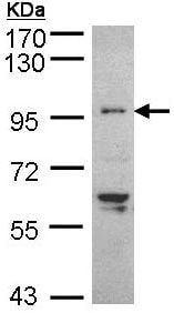 Western blot - Anti-TNNI3K antibody (ab96684)