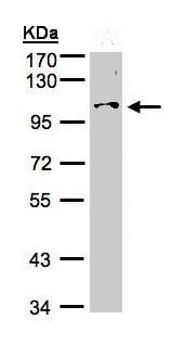 Western blot - Anti-NCKAP1 antibody (ab96715)