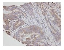 Immunohistochemistry (Formalin/PFA-fixed paraffin-embedded sections) - Anti-NSMAF antibody (ab96804)