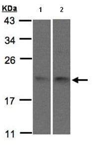 Western blot - Anti-SNX12 antibody (ab96840)