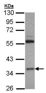Western blot - Anti-HMGCL antibody (ab97293)