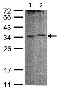 Western blot - Anti-ACT antibody (ab97396)