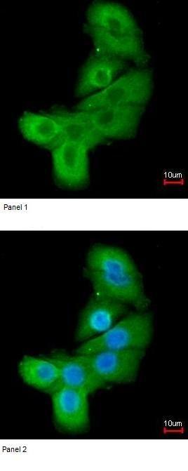 Immunocytochemistry/ Immunofluorescence - Anti-LIM kinase 2 antibody (ab97773)
