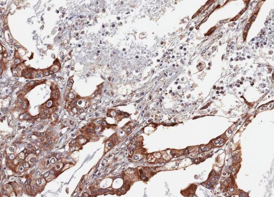 Immunohistochemistry (Formalin/PFA-fixed paraffin-embedded sections) - Anti-HPSE2 antibody (ab97807)