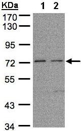 Western blot - Anti-FLRT1 antibody (ab97825)