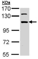 Western blot - Anti-RBM28 antibody (ab97840)