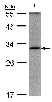 Western blot - Anti-ANKRD45 antibody (ab97878)