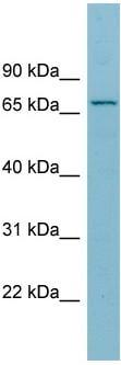 Western blot - Anti-SLC27A5 antibody (ab97884)