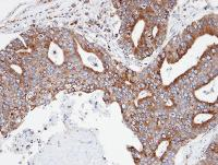 Immunohistochemistry (Formalin/PFA-fixed paraffin-embedded sections) - Anti-CPNE3 antibody (ab97919)