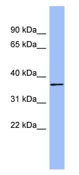 Western blot - Anti-HAPLN1 antibody (ab98038)