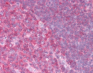 Immunohistochemistry (Formalin/PFA-fixed paraffin-embedded sections) - Anti-Hsc70 antibody (ab98156)