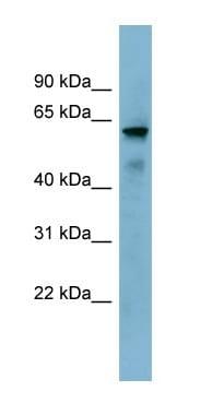 Western blot - Anti-METTL14 antibody (ab98166)