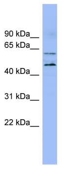 Western blot - Anti-LMF1 antibody (ab98242)