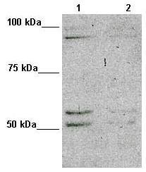 Western blot - Anti-MAP7D1 antibody (ab98274)