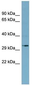 Western blot - Anti-MGC4172 antibody (ab98276)
