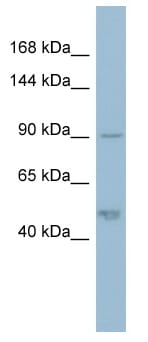 Western blot - Anti-Plakophilin 2 antibody (ab98328)