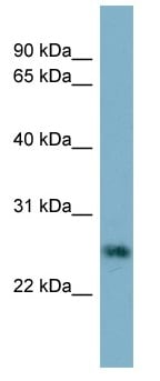 Western blot - Anti-Neurotrophin 4 antibody (ab98347)