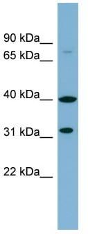 Western blot - Anti-C9ORF4 antibody (ab98878)